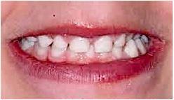 Manque de place pour les dents définitives